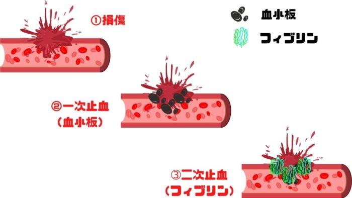 一次止血と二次止血