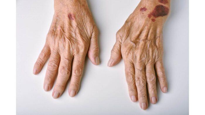 老人性紫斑