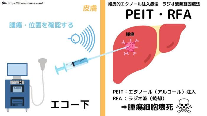 PEIT・RFA