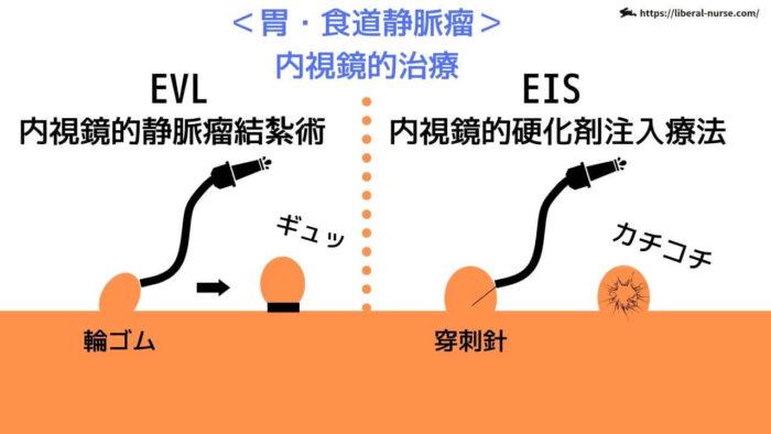 EVL・EIS・内視鏡的治療について
