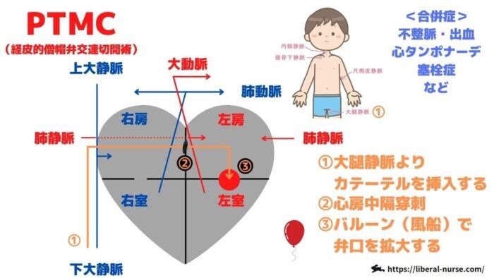 PTMC・経皮的僧帽弁交連切開術