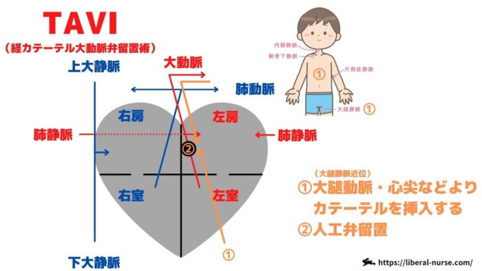 TAVI・経カテーテル大動脈弁留置術