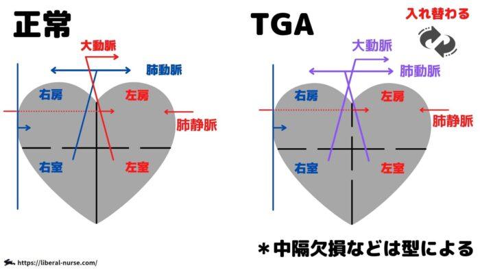 完全大血管転位症・TGA