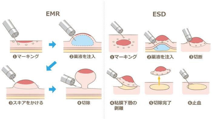 EMR・ESD