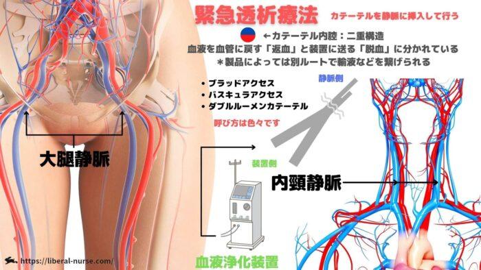 緊急透析療法・外シャント