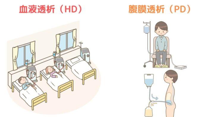 血液透析・腹膜透析