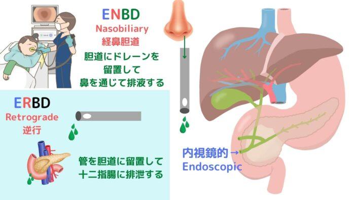 EBD・ENBD・ERBD
