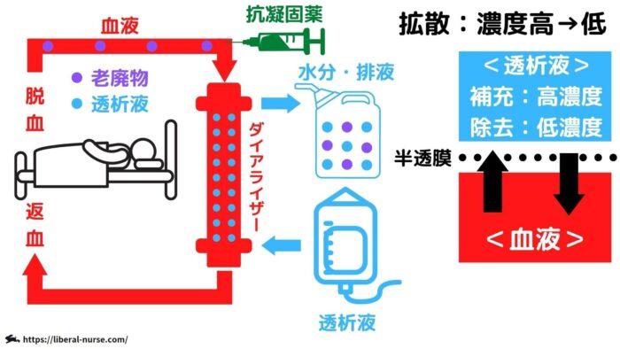 血液透析について