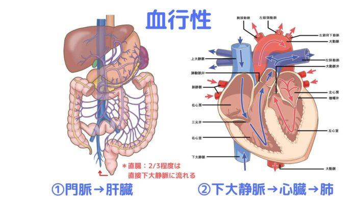 血行性転移