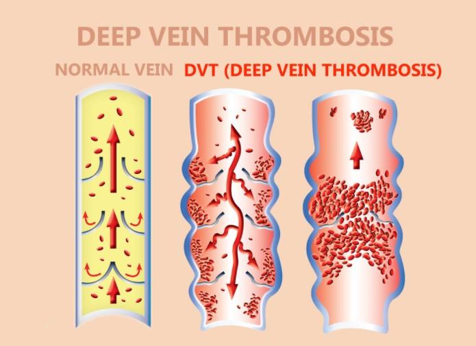 DVT・深部静脈血栓症