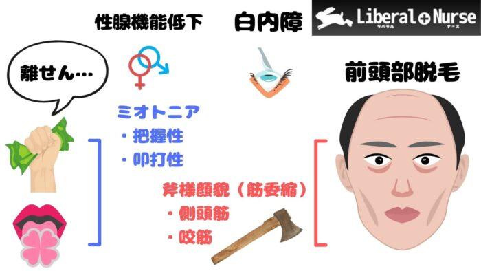 筋強直性ジストロフィー・斧様顔貌・ミオトニア