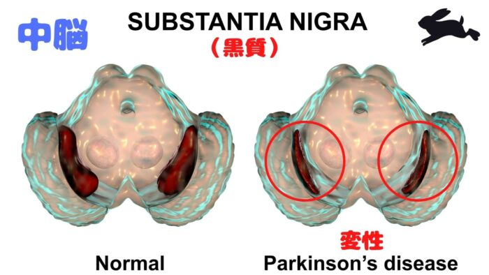 黒質・パーキンソン病