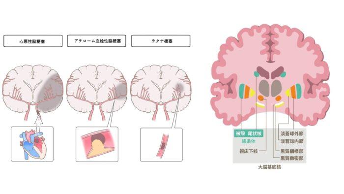 脳梗塞・大脳基底核