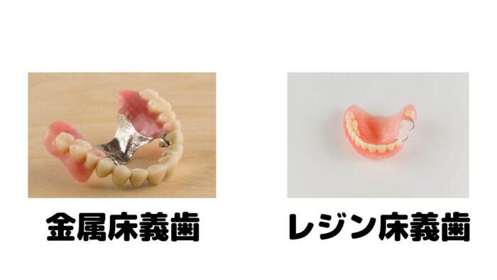 レジン・金属床義歯