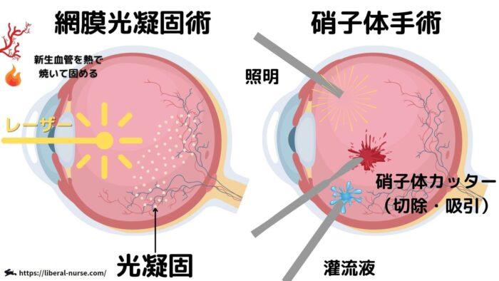網膜光凝固・硝子体手術