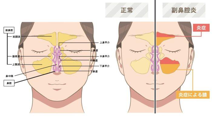 副鼻腔・副鼻腔炎