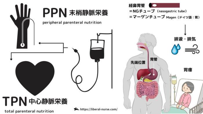 栄養療法・TPN・PPN・EN