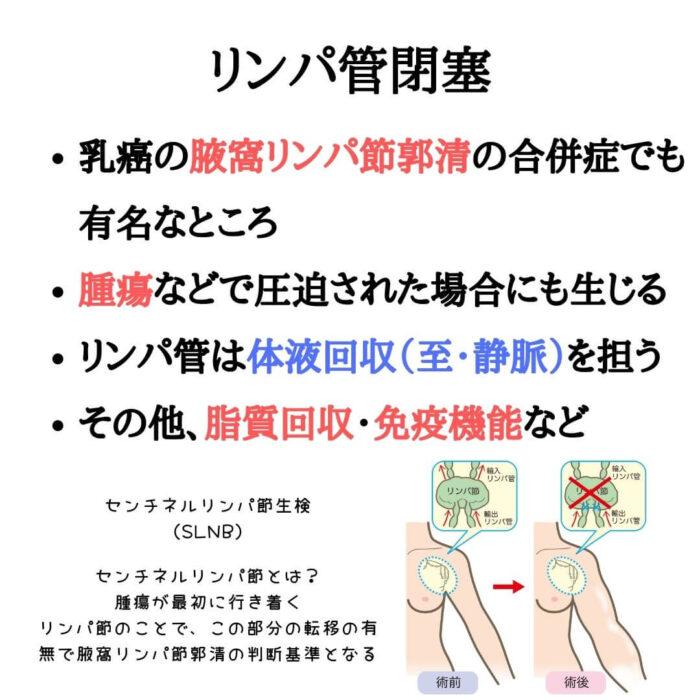 リンパ管閉塞