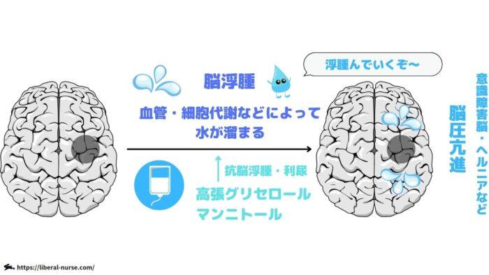 抗脳浮腫薬