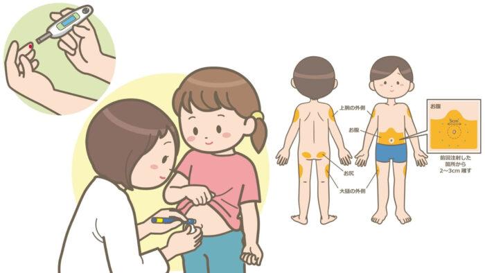 インスリン皮下注射